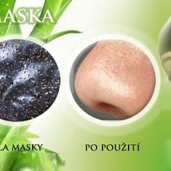 Boj proti černým tečkám a akné - Pilaten-maska.cz
